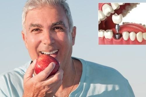 chức năng ăn nhai như răng thật