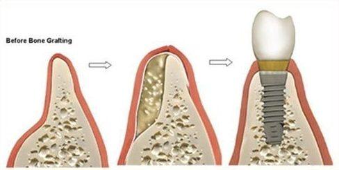 trồng răng implant ngăn chặn tình trạng tiêu xương