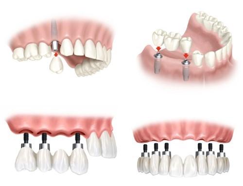 phương pháp trồng răng giả có chân răng