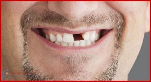 Phương pháp trồng răng giả có hại gì không 1