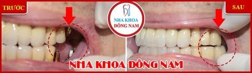 Phương pháp trồng răng giả có hại gì không 16