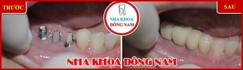 Phương pháp trồng răng giả có hại gì không 17