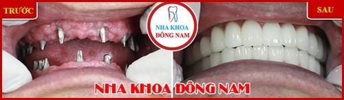 Phương pháp trồng răng giả có hại gì không 18