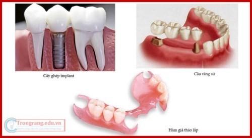 Phương pháp trồng răng giả có hại gì không 2