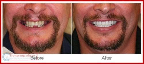 Phương pháp trồng răng giả có hại gì không 3