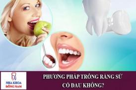 phương pháp trồng răng sứ có đau không