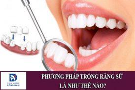 phương pháp trồng răng sứ là như thế nào
