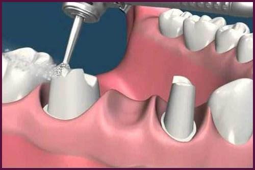 phương pháp trồng răng sứ là như thế nào 4