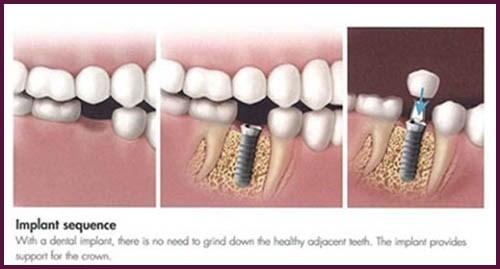 phương pháp trồng răng sứ là như thế nào 6