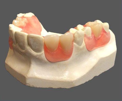 quy trình làm răng giả tháo lắp tại nha khoa Đông Nam 1