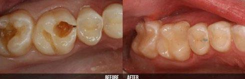 răng bị sâu nên nhổ hay giữ lại 2