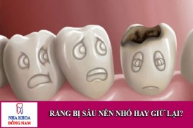 răng bị sâu nên nhổ hay giữ lại