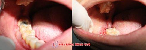 răng bị sâu nên nhổ hay giữ lại 3