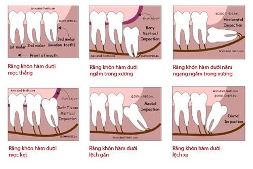 răng khôn bị sâu có nên trám không 2