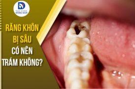 răng khôn bị sâu có nên trám không