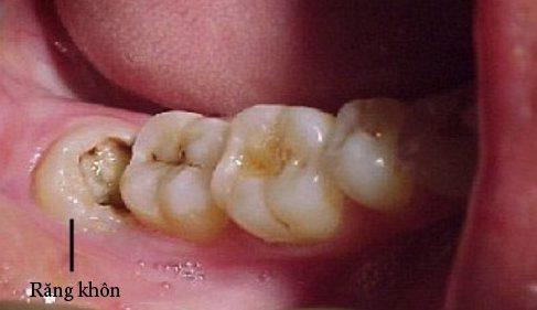 răng khôn bị sâu có nên trám không 1