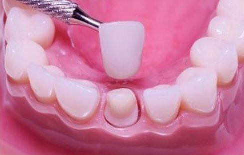 răng sâu lỗ to có trám được không 3