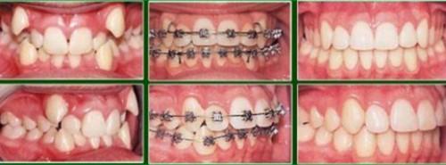sau khi sinh có niềng răng được không 5