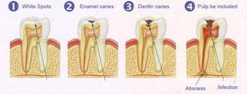bệnh sâu răng có chữa được không 1