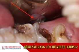 bệnh sâu răng có chữa được không