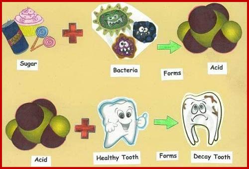 sự thật về con sâu ở trong răng