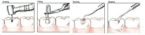 sự thật về con sâu ở trong răng 4