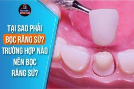 tại sao phải bọc răng sứ trường hợp nào nên bọc răng sứ