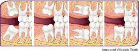 tại sao phải nhổ răng số 8 1