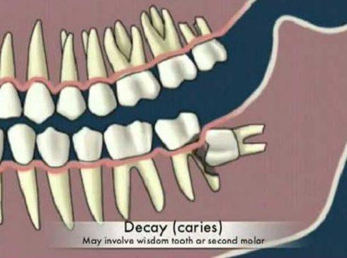 tại sao phải nhổ răng số 8 4
