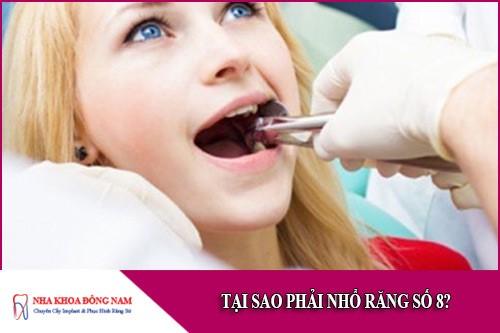 tại sao phải nhổ răng số 8