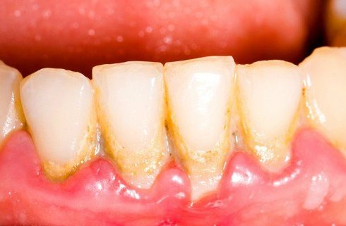 tại sao răng lại bị ố vàng theo thời gian 1