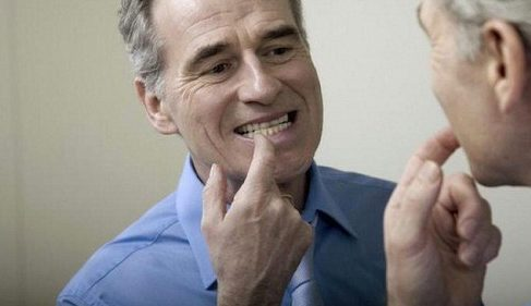 tại sao răng lại bị ố vàng theo thời gian 6