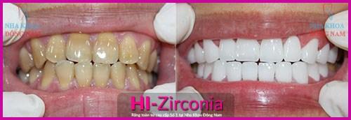 trải nghiệm răng toàn sứ cao cấp hi–zirconia với ưu đãi 20% 4