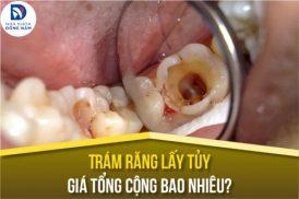 Trám Răng Lấy Tủy giá tổng cộng bao nhiêu?