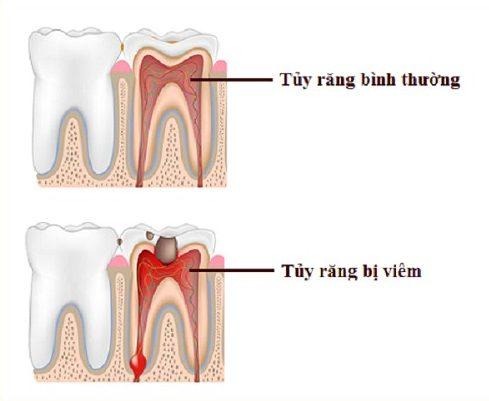 trám răng lấy tủy giá tổng cộng bao nhiêu 1