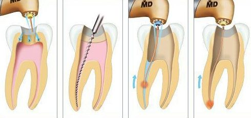 trám răng lấy tủy giá tổng cộng bao nhiêu 2