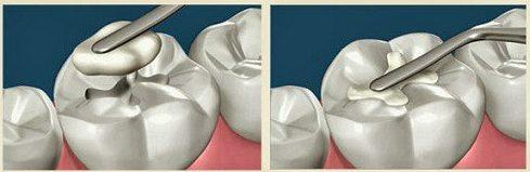 trám răng lấy tủy giá tổng cộng bao nhiêu 3