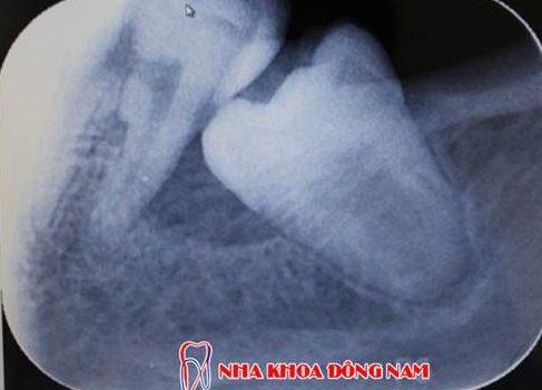 trám răng lấy tủy giá tổng cộng bao nhiêu 4