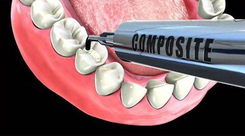 trám răng thẩm mỹ giữ được bao lâu 1