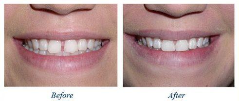 trám răng thẩm mỹ giữ được bao lâu 4