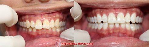 trám răng thẩm mỹ giữ được bao lâu 6