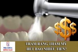 trám răng thẩm mỹ hết bao nhiêu tiền