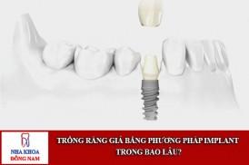 trồng răng giả bằng phương pháp implant trong bao lâu