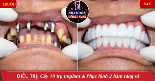cấy ghép implant và phục hình sứ 2 hàm