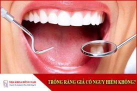 trồng răng giả có nguy hiểm không