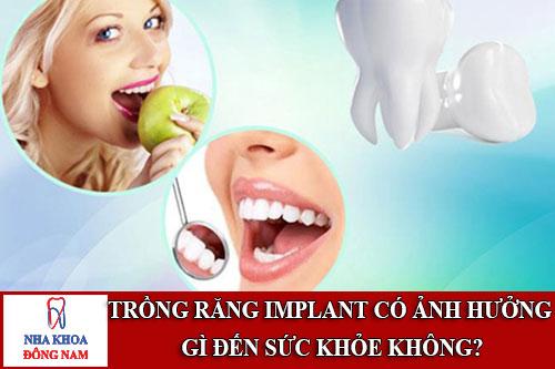 trồng răng implant có ảnh hưởng gì đến sức khỏe không?
