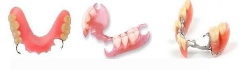 trồng răng bằng hàm giả tháo lắp