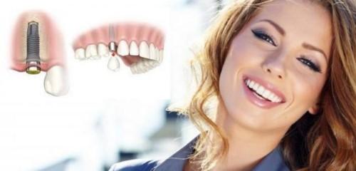 vì sao cần phải trồng lại răng khi mất răng
