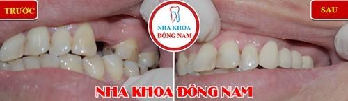 trồng răng bằng cầu răng sứ