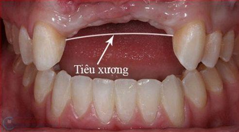 tình trạng tiêu xương khi mất răng
